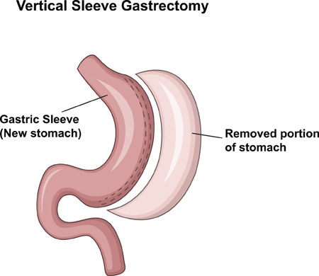 Removed portion of stomach