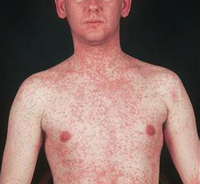 Man with measles
